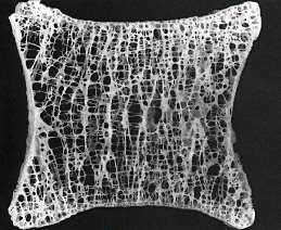 Анатомический препарат тела позвонка с признаками остеохондроза. Истончение трабекул, увеличение межтрабекулярных пространств (костная ткань более «воздушная»), костная ткань.