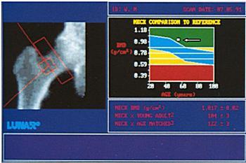 Рентгеновская денситометрия костной ткани тазобедренного сустава. Норма. Плотность костной ткани не изменена, метка расположена в верхнем сегменте денситограммы — указано стрелкой
