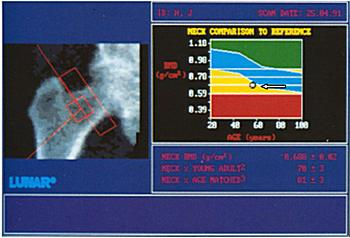 Рентгеновская денситометрия костной ткани тазобедренного сустава. Остеопороз. Плотность костной ткани снижена, метка смещена в нижний (желтый) сегмент денситограммы — указано стрелкой