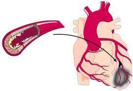 Закупорка коронарной артерии тромбом