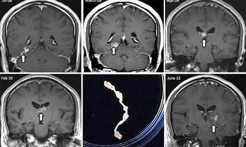 Паразиты головного мозга.