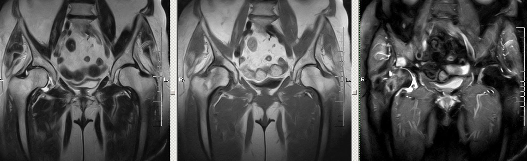 Артрит правого тазобедренного сустава (МРТ)