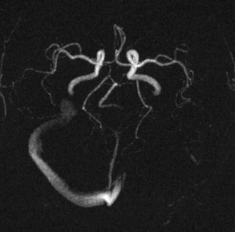 анализа медленного венозного кровотока головного мозга