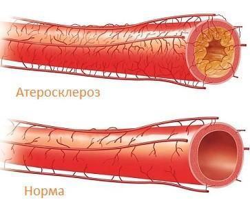 Атеросклерозом сосудов