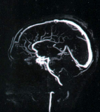 ВСД анализ сосудов головного мозга