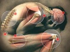 Фибромиалгия (ФМ)