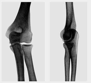 Боль в локтевом суставе: что делать, диагностика, лечение