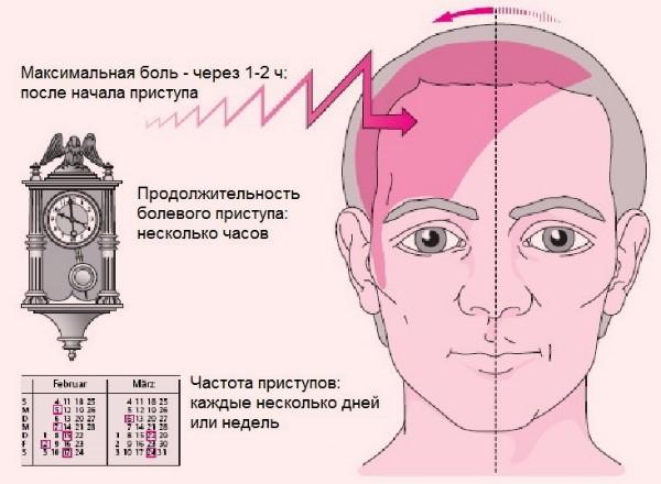 Мигрень. Причины, лечение мигрени