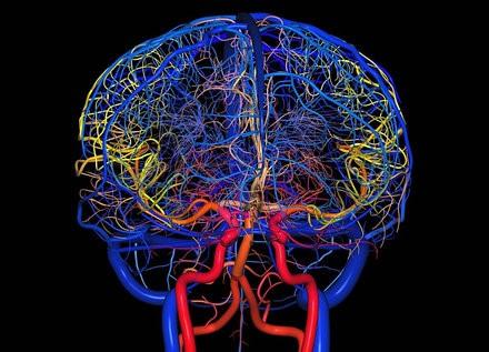 Установлена причина мигрени. Вылечить мигрени можно точечной коррекцией гидродинамики кровотока мозга
