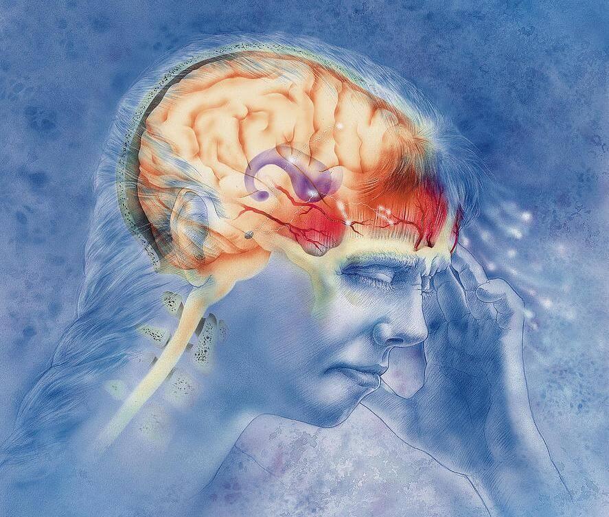 Причины возникновения мигрени